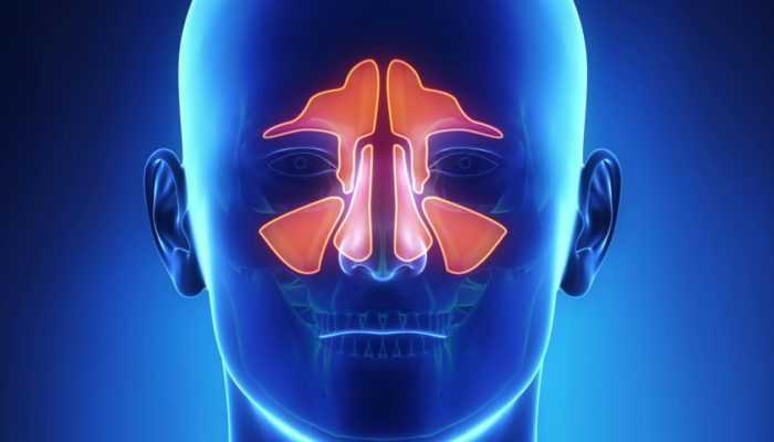 Симптомы гайморита, причины и лечение гайморита
