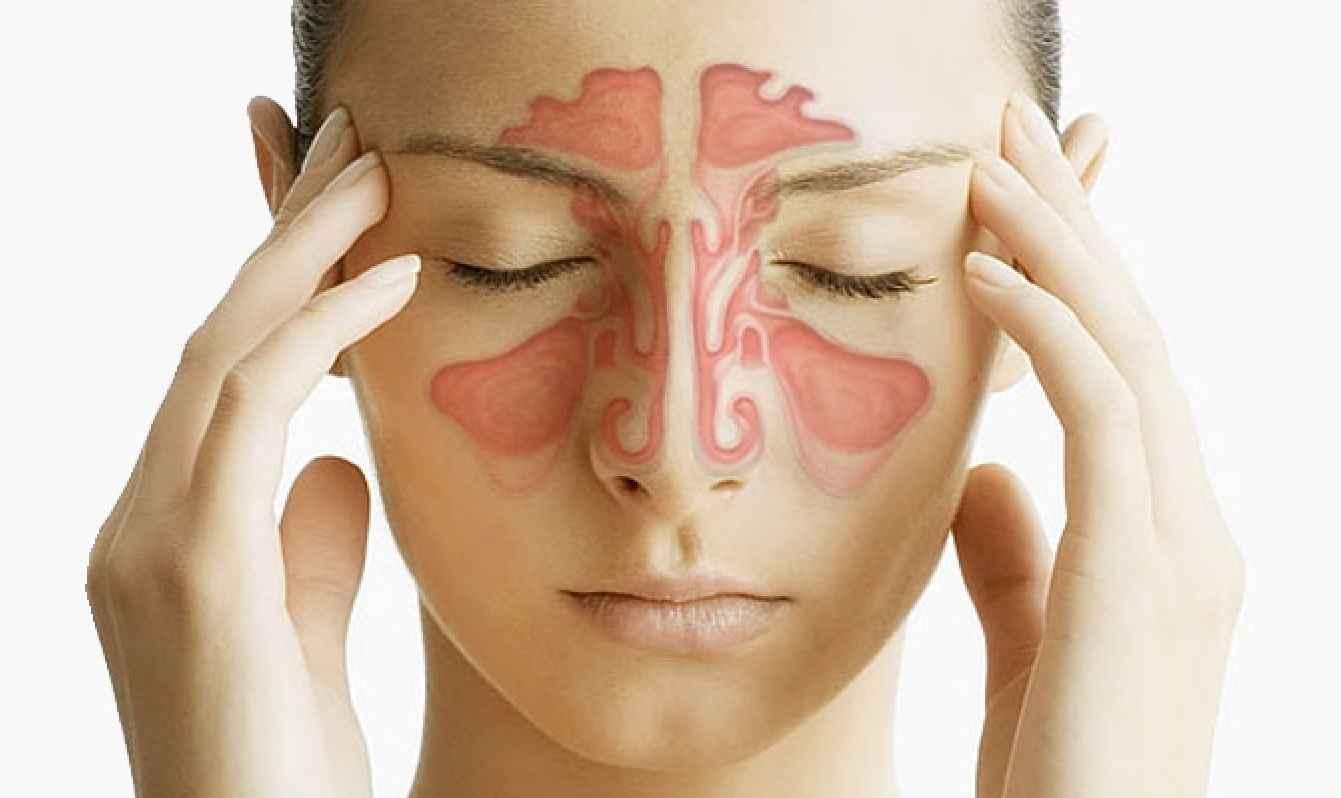 Фронтит симптомы и лечение