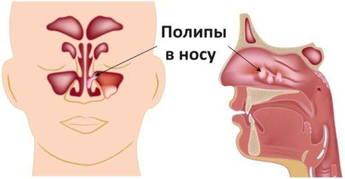 Диагностика, причины и лечение полипоза