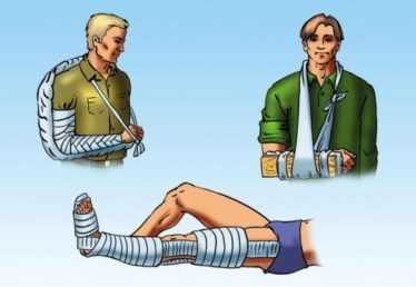 Первая помощь при переломе, лечение консолидация перелома