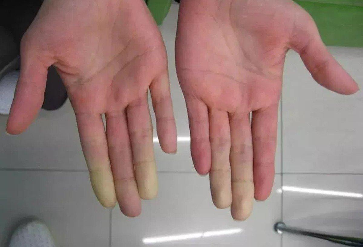 cтадии синдрома Рейно