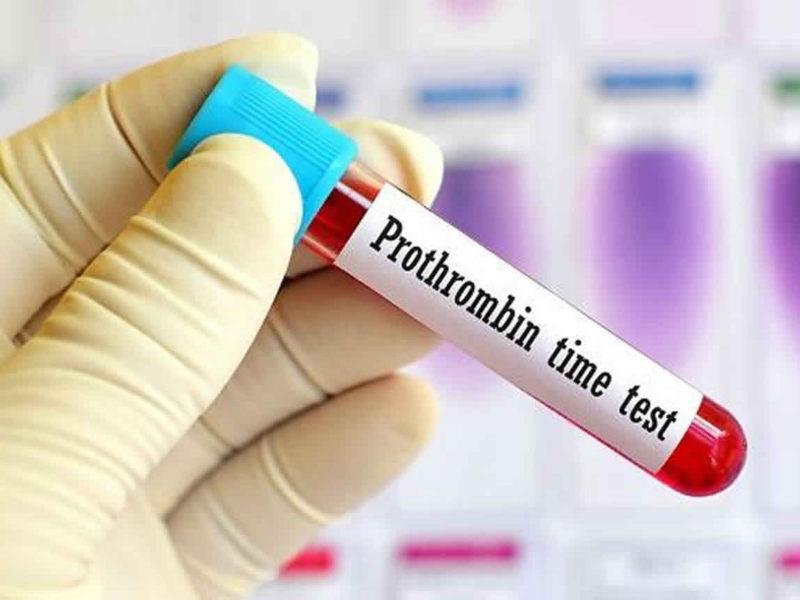 высокий протромбин в крови при приеме препаратов