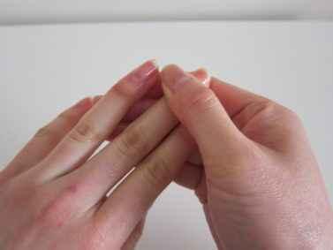Панариций пальца лечение в домашних условиях