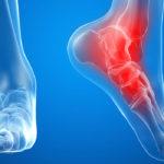 Бурсит: симптомы, причины, лечение