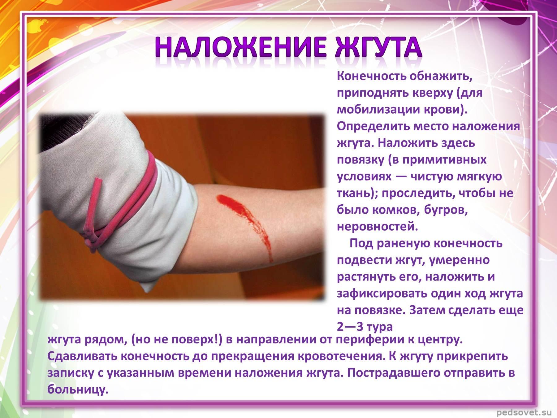 внешнее кровотечение, помощь