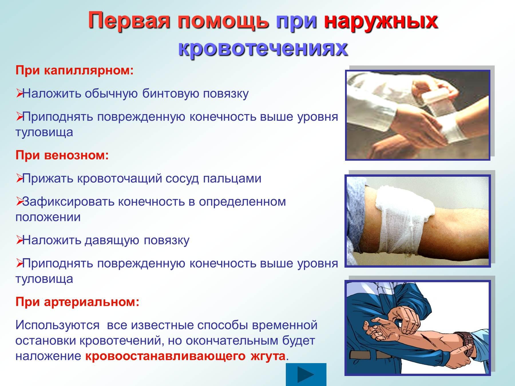 внешнее кровотечение симптомы