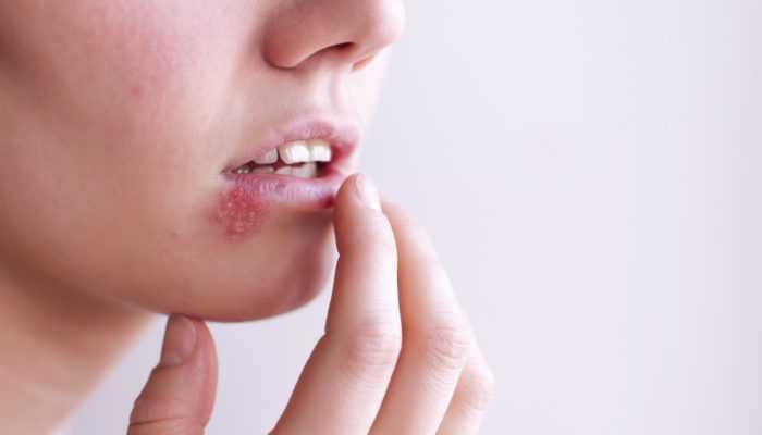 Герпес: симптомы, факторы риска, лечение