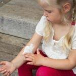 Детская экзема: причины и лечение