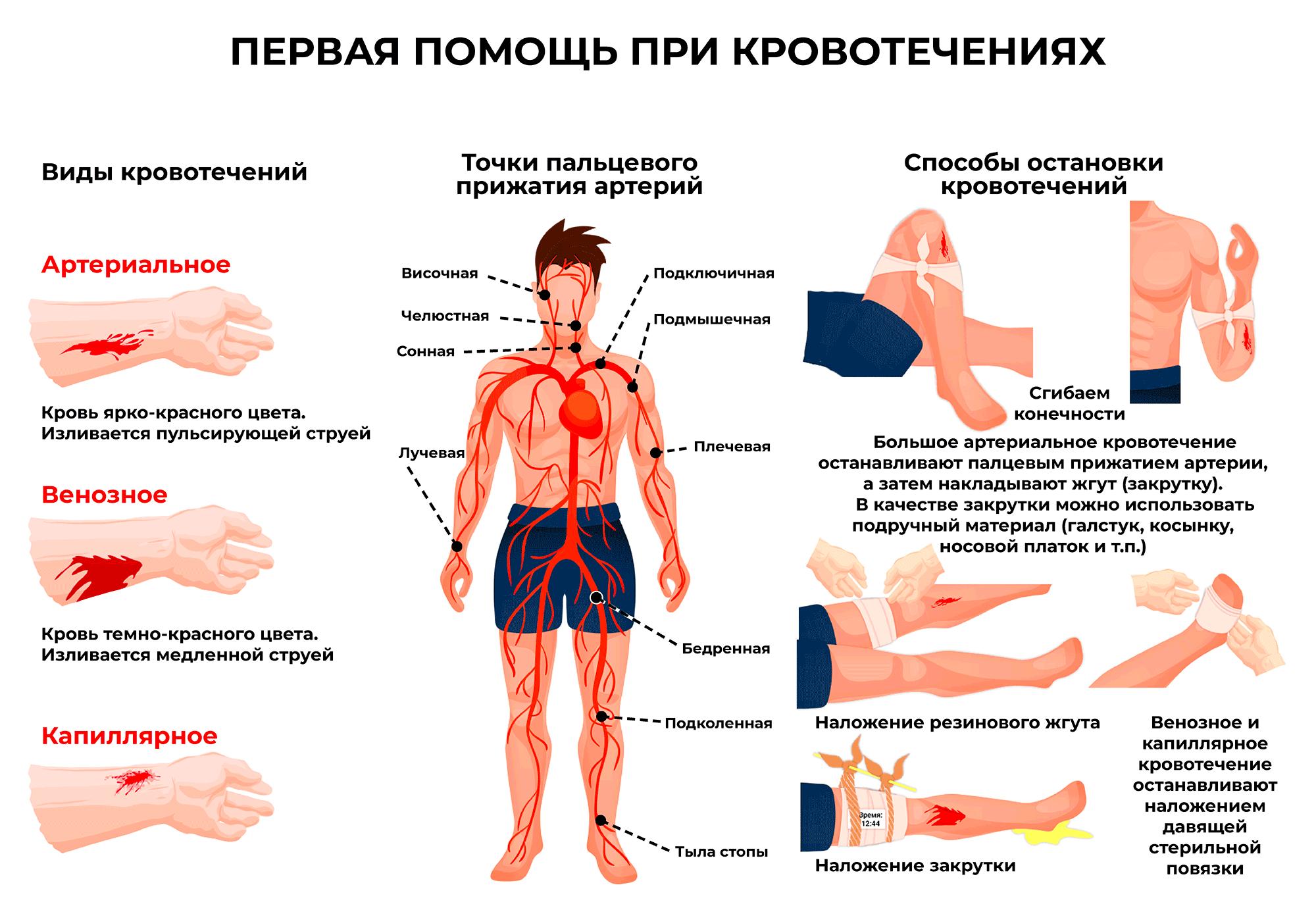 кровотечение первая помощь