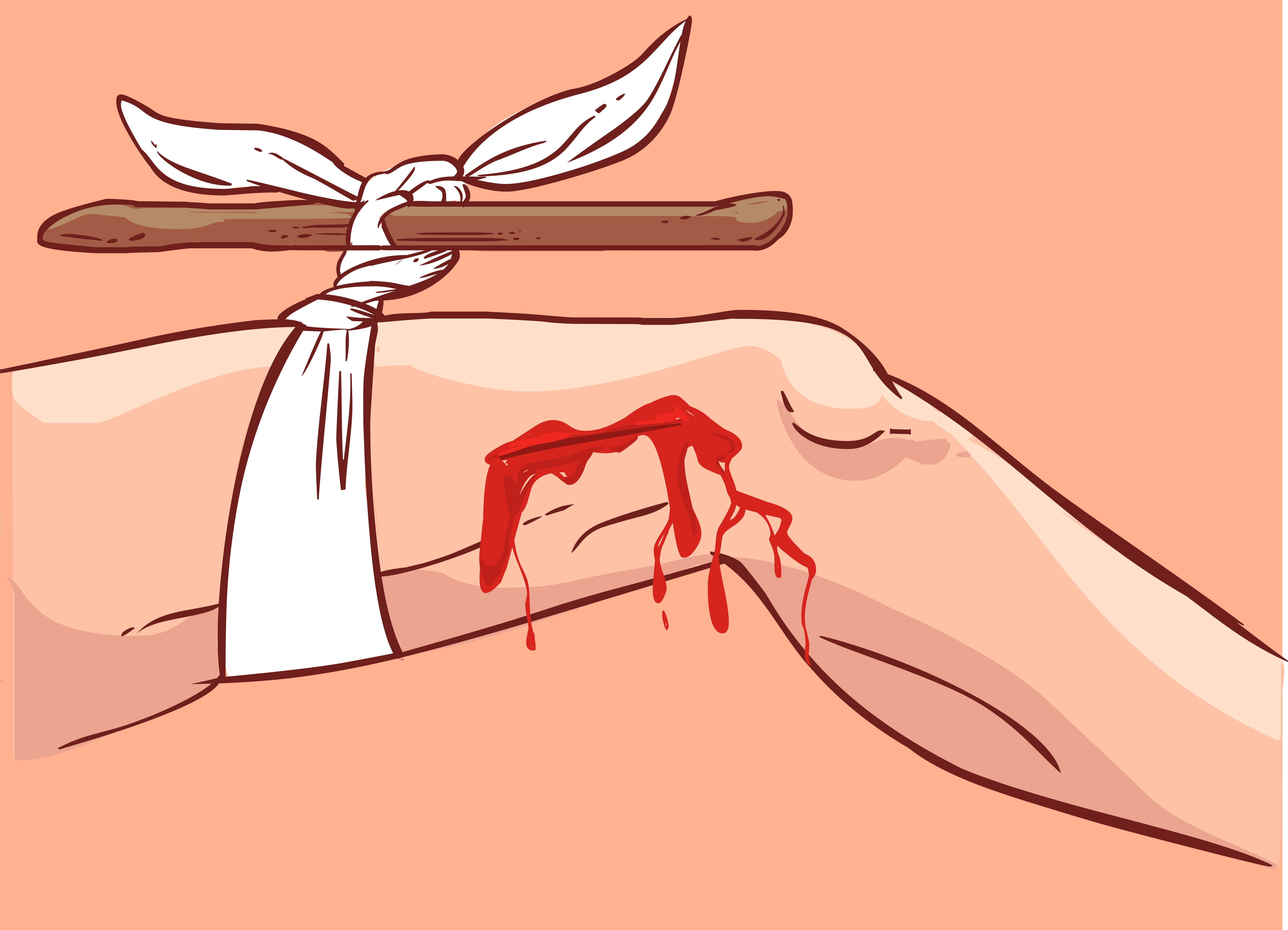 тяжелое внешнее кровотечение