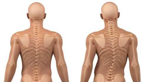 Исправление сколиоза позвоночника у взрослых, лечение. гимнастика, профилактика и массаж, также причины и последствия.