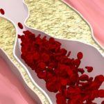 Высокий уровень холестерина — диета, симптомы и причины