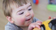 диатез у ребенка