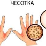 Чесотка симптомы и лечение