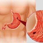 Язва желудка. Причины заболевания, симптомы и способы лечения