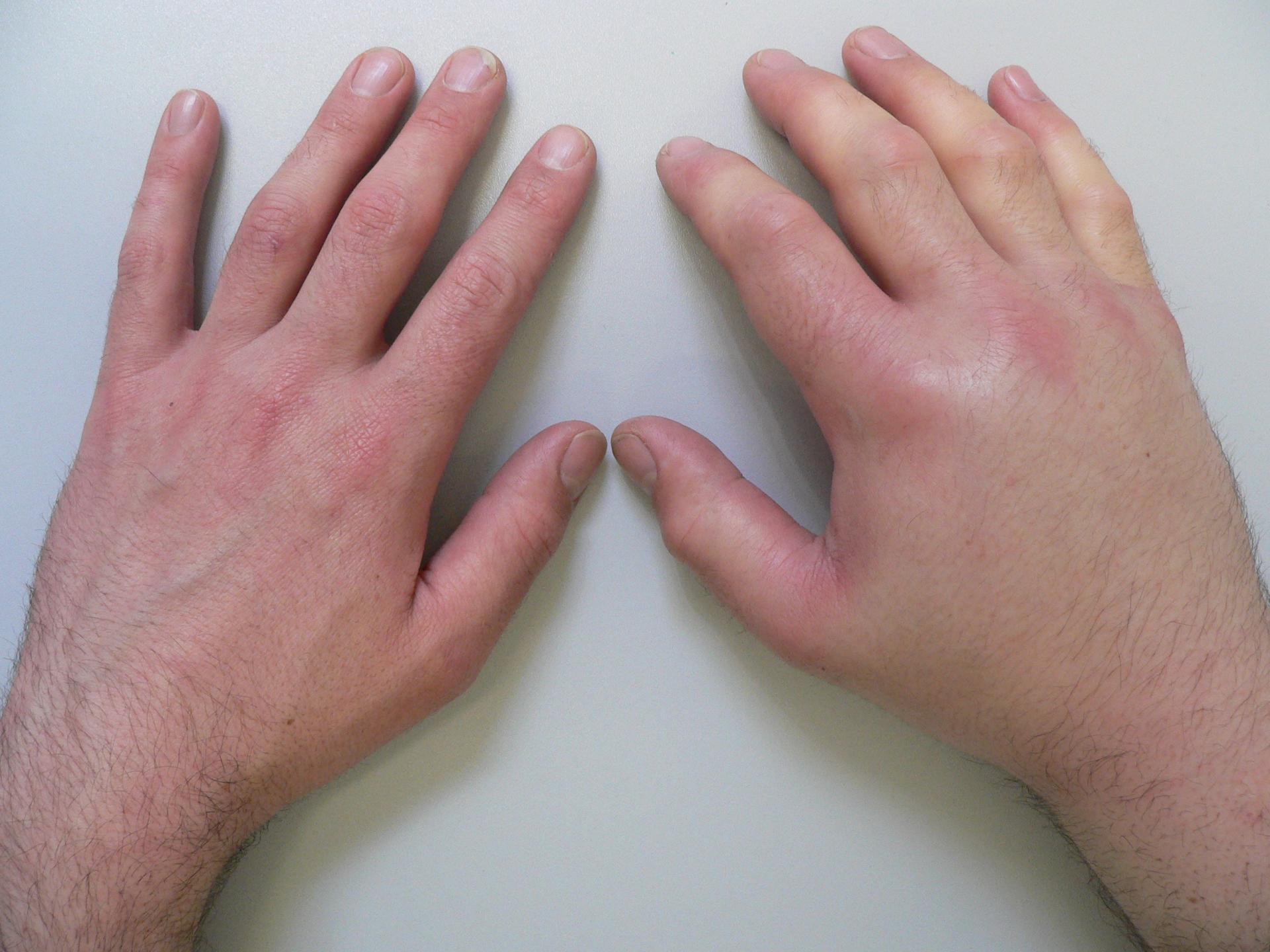 лимфатические отеки рук