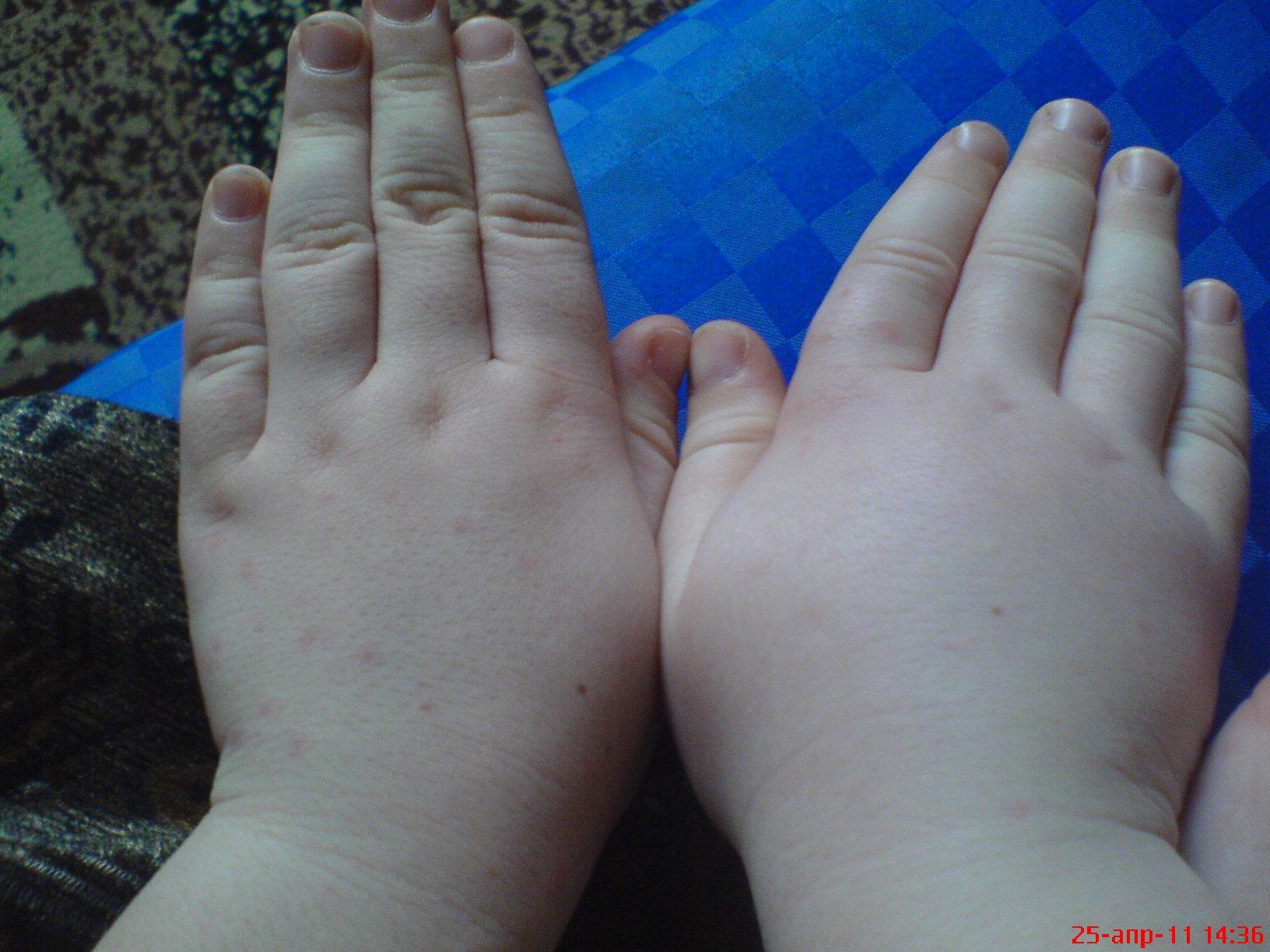 отекают пальцы и руки, аллергия