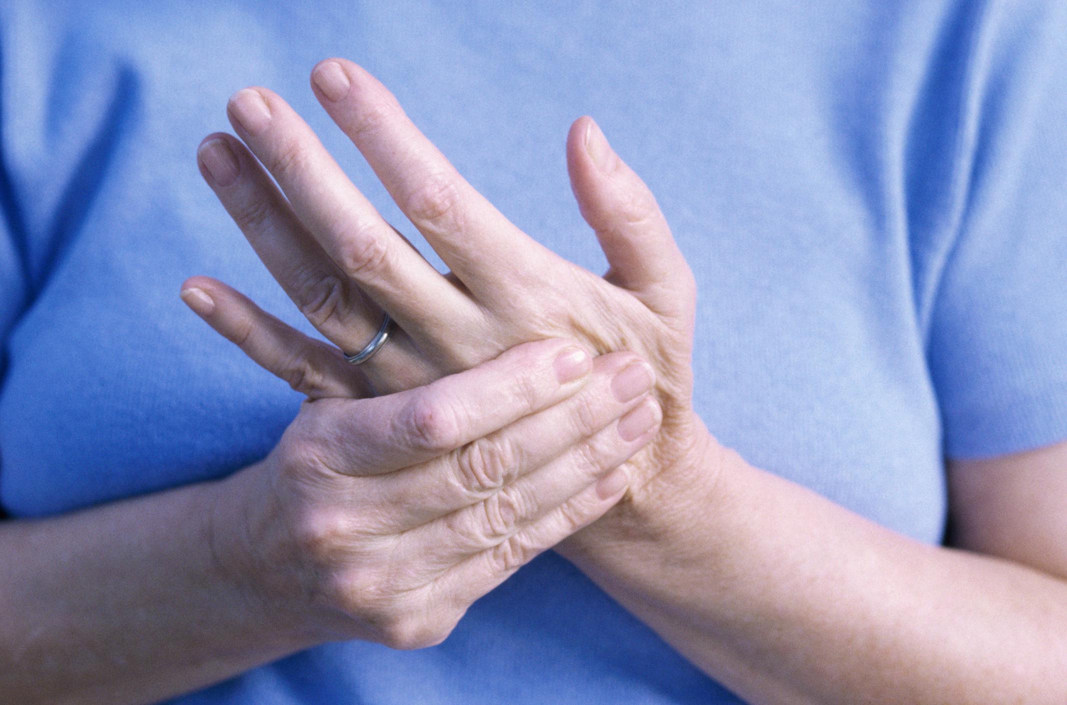 отекают руки - артрит