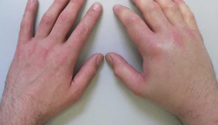 Отекают руки и пальцы по утрам