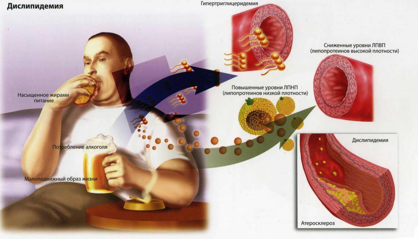 причины атеросклероза сердца