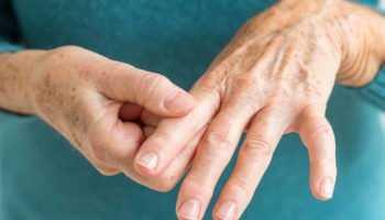 Ревматоидный артрит: прогноз и продолжительность жизни
