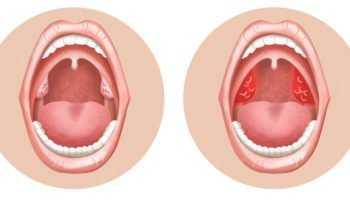 Миндалины или тонзиллит – удалить или оставить?
