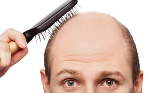 Почему выпадают волосы и что с этим делать?