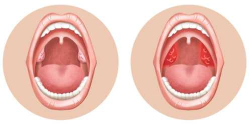 тонзиллит, миндалины