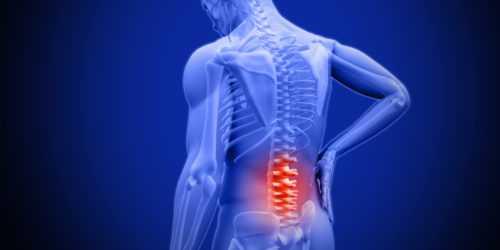 Компрессионный перелом позвоночника, диагностика