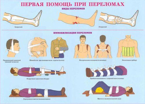 первая помощь при переломах костей