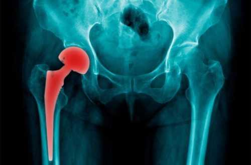 перелом шейки бедра, эндопротезирование