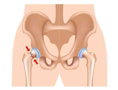 Cроки восстановления при переломе шейки бедра у пожилых людей без операции