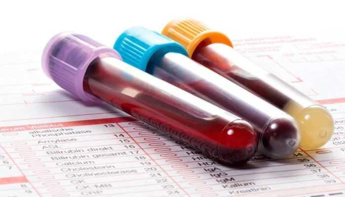 Анализ крови — гемоглобин, лейкоциты и эритроциты