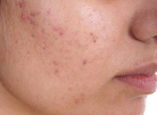 Лечение акне и угрей расторопшей