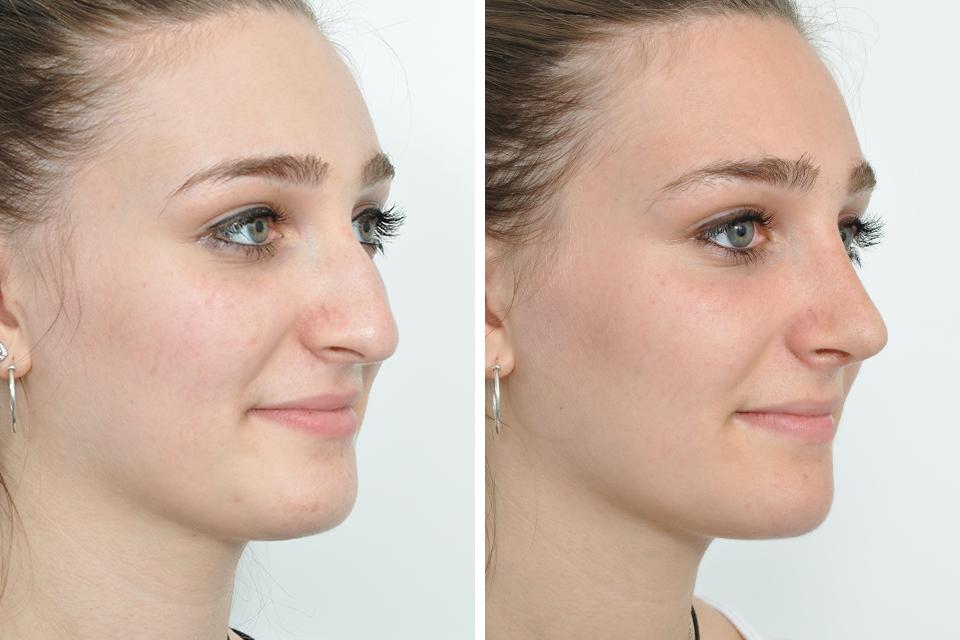 Ринопластика носа, до и после операции
