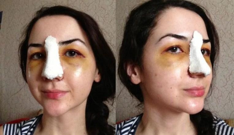 реабилитационный период после ринопластики носа