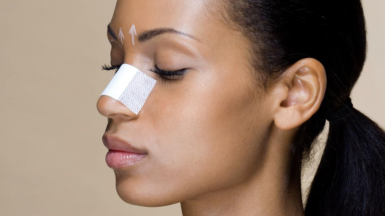 Ринопластика - пластическая операция на нос