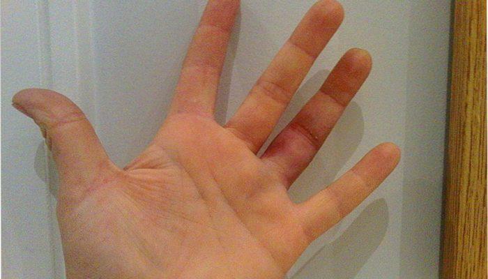 отекают пальцы при травме