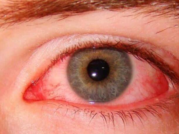 глазное давление симптомы