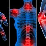 Ревматизм причины, симптомы и лечение