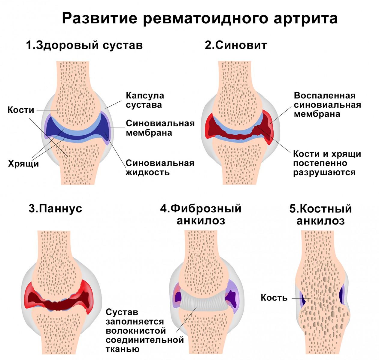 ревматоидный артрит развитие